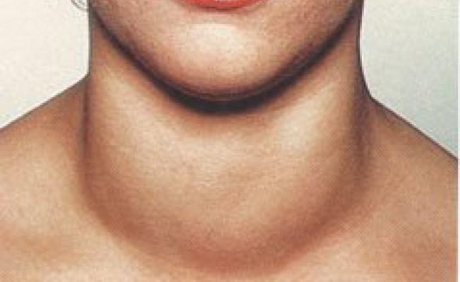 как болит щитовидная железа у мужчин симптомы