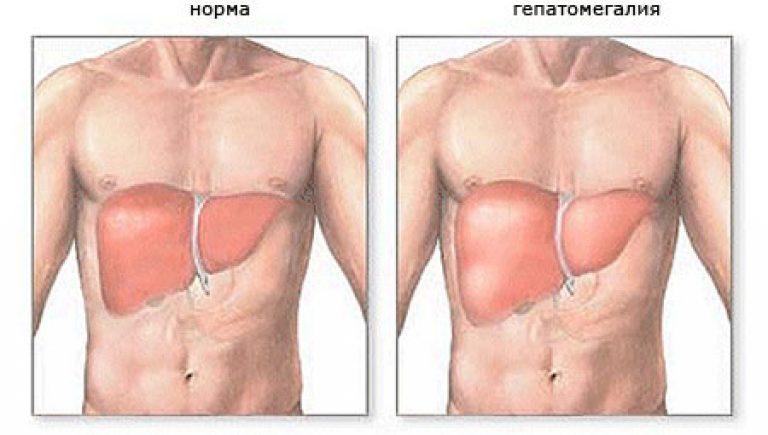 хронический гепатит рекомендации