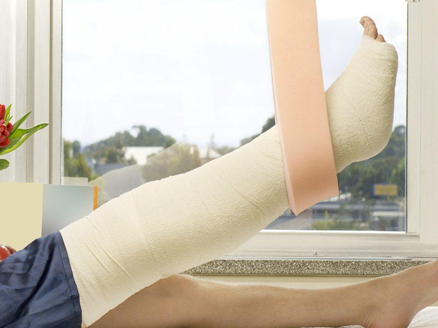 Переломы нижних конечностей лечение