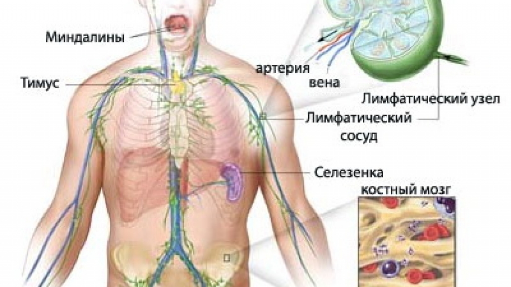 Прогноз при неходжкинской лимфоме