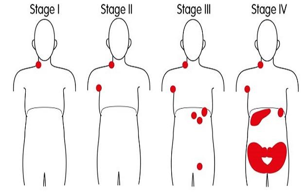 Стадии неходжкинской лимфомы