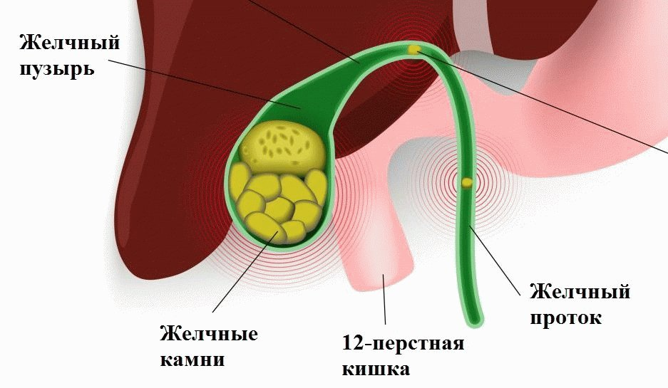 Рак желчного пузыря МКБ