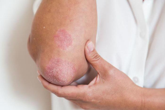 псориаз при беременности лечение