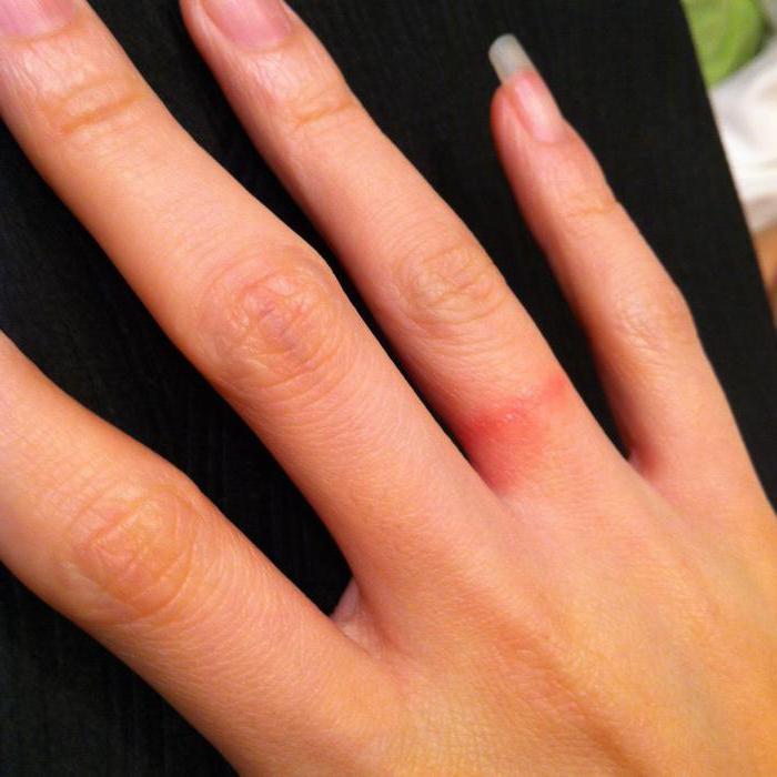 бывает ли аллергия на йод