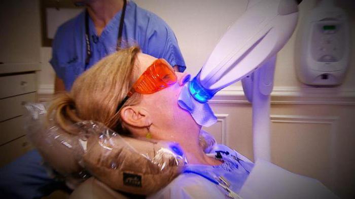 внутриканальное отбеливание мертвого зуба