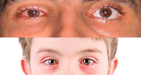 Лечение острого конъюнктивита у детей и взрослых: способы и препараты