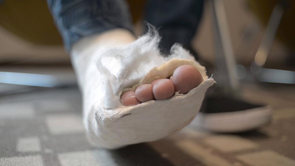 сколько носят гипс при переломе ноги