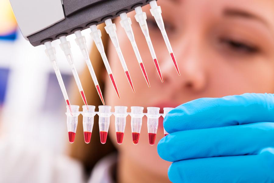 ПЦР диагностика крови