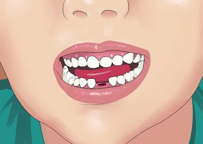 не выпали молочные зубы у взрослого