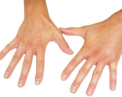 как снять отек с пальцев рук