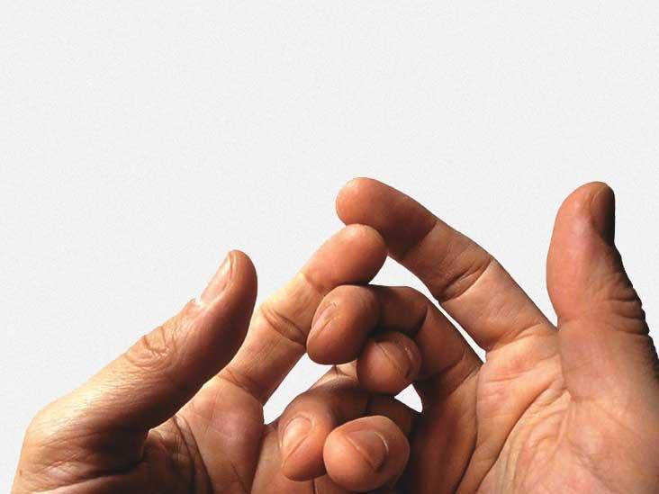 отекают пальцы рук