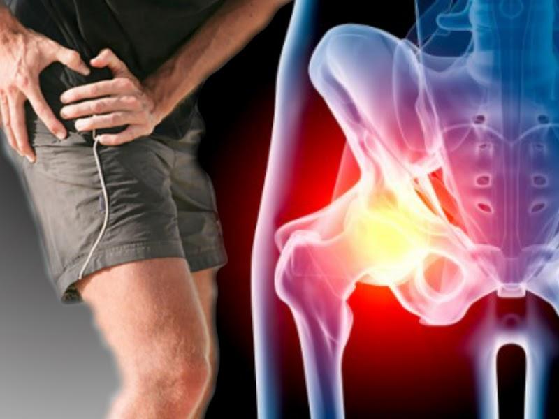 Растяжение паховых связок: лечение, симптомы, возможные причины, проведение диагностических исследований, врачебное наблюдение и восстановительный период