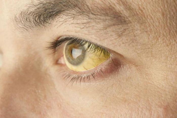 Механическая желтуха: код по МКБ-10, причины, симптомы и особенности лечения