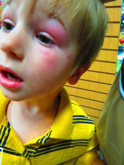 укус насекомого опухоль и покраснение на лице