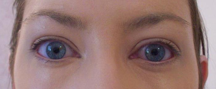 аллергия опухли глаза