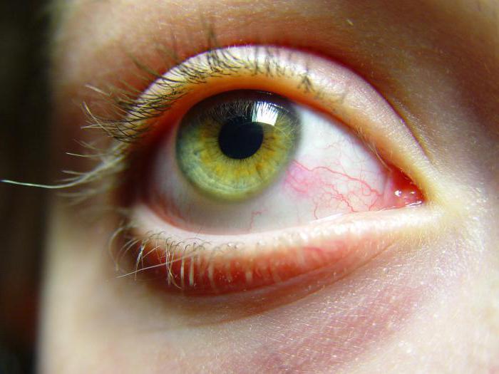 аллергия на ресницы нарощенные как избавиться