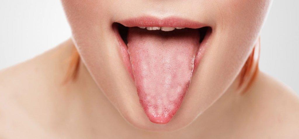 Язык и рот