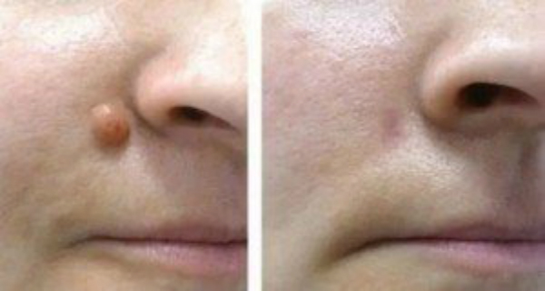 Фиброма на носу удаление 25