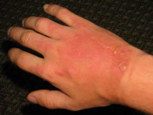 чем мазать руки от аллергии