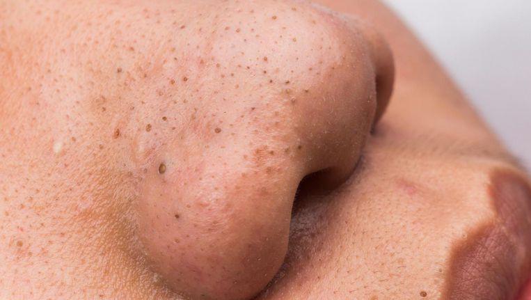 Черные точки на носу как избавится в домашних условиях 150