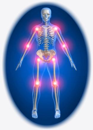 Деформированный артроз, причины возникновения и лечение