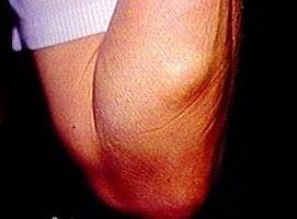 Жировик на руке под кожей