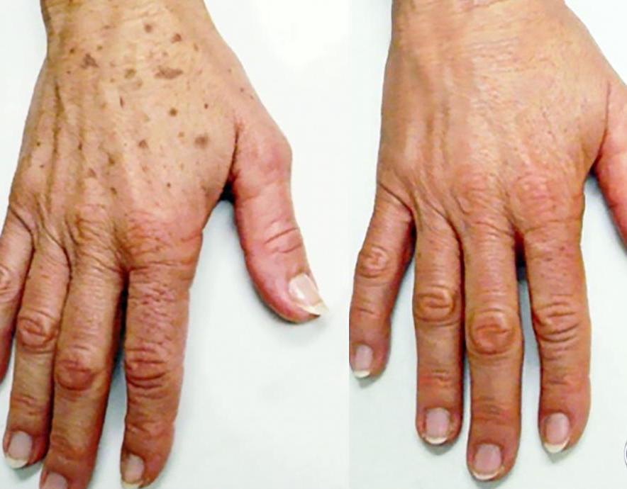 spots on the hand