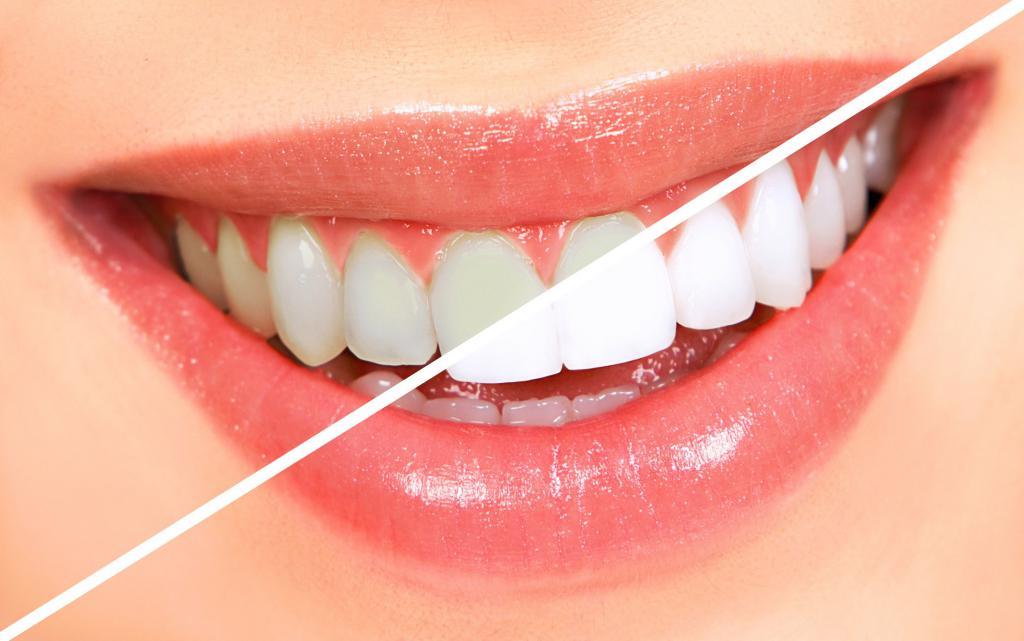 Лазерное отбеливание зубов уфа