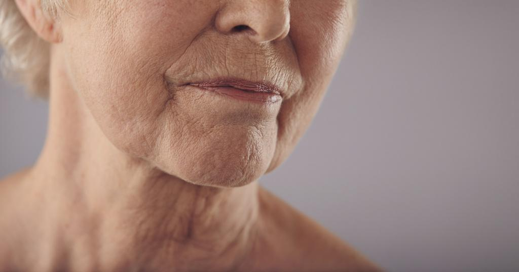 Шершавые пятна на теле у взрослого чешется 9