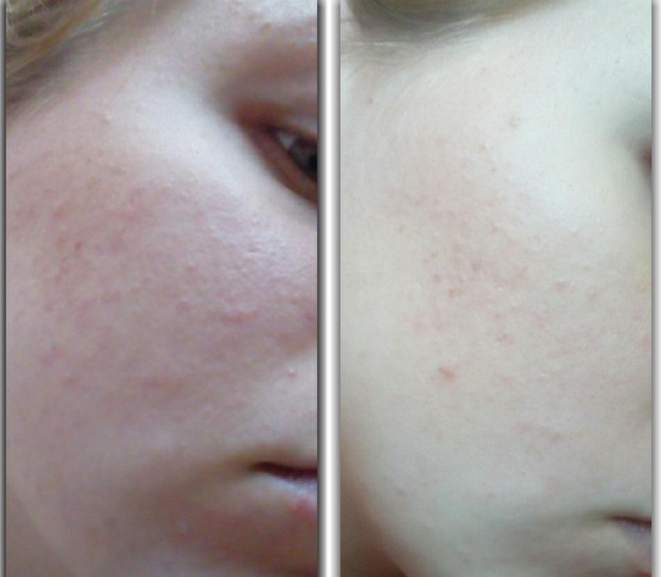 """Средство для проблемной кожи """"Скинонорм"""": отзывы и описание"""