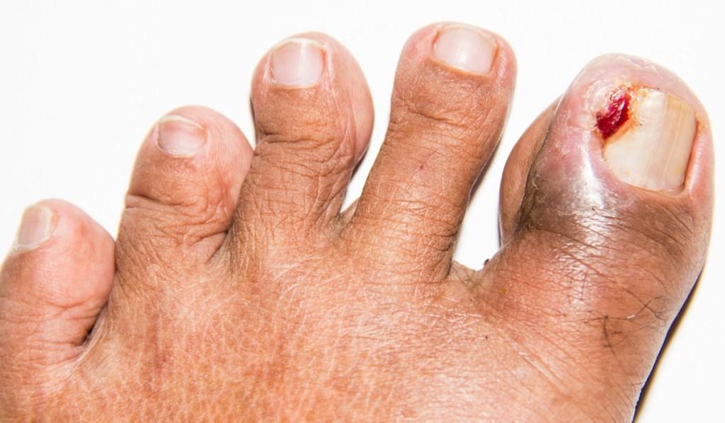 грязные ногти сон
