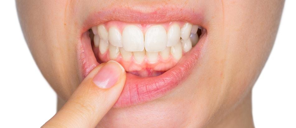 девитализирующая паста в стоматологии