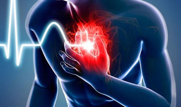 безболевая ишемия миокарда осложнения