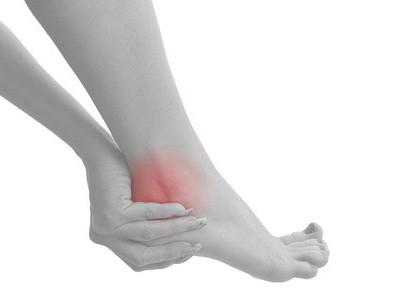 Симптомы посттравматического артроза голеностопного сустава