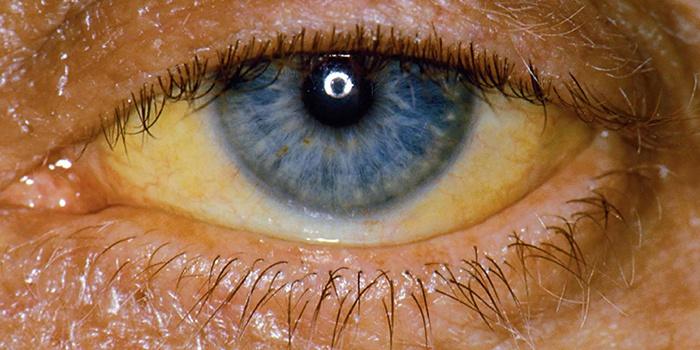 Симптомы цитолитического синдрома