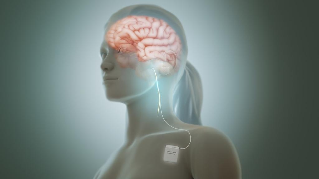 Симптомы мигрени у подростков