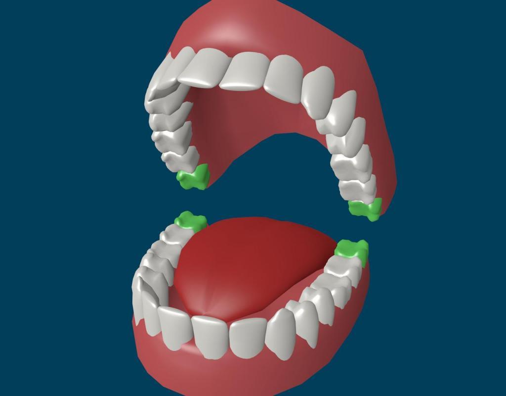 Особенности роста зубов мудрости