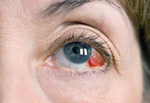 Симптомы кровоизлияния в глазу