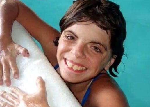 Синдром Корнелии де Ланге: фото, причины, симптомы, диагностика, прогноз, продолжительность жизни, лечение