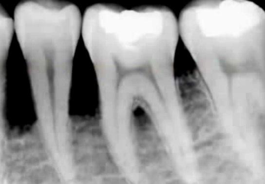 Чувствительность живого зуба под коронкой 121