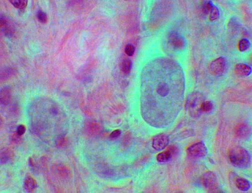 Протозойная инфекция это 22