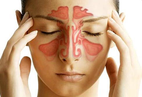 Лечение острого синусита