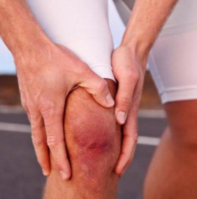 хондромаляция 3 степени коленного сустава