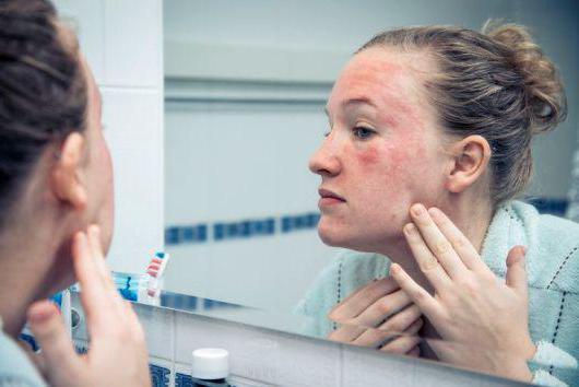 аллергия атопическая дерматит