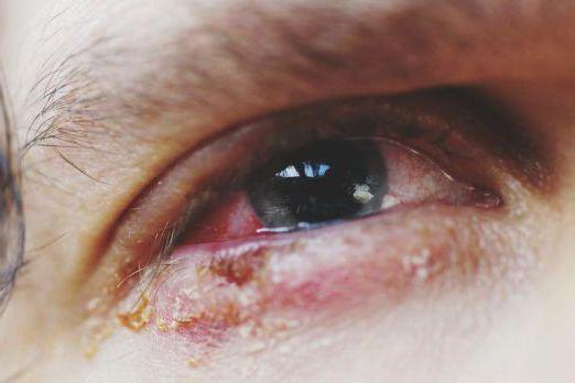 атопическая аллергия лечение