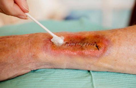 серома послеоперационного шва после кесарева лечение