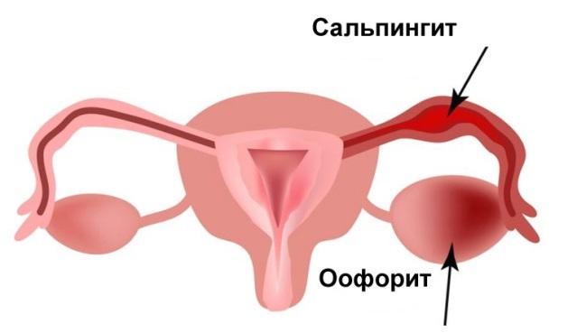 сальпингит оофорит