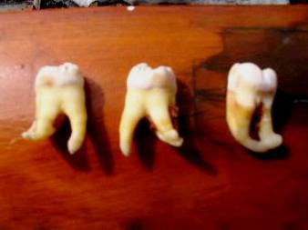 Удалили зуб мудрости сколько будет болеть