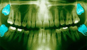 Удалили зуб мудрости опухла щека