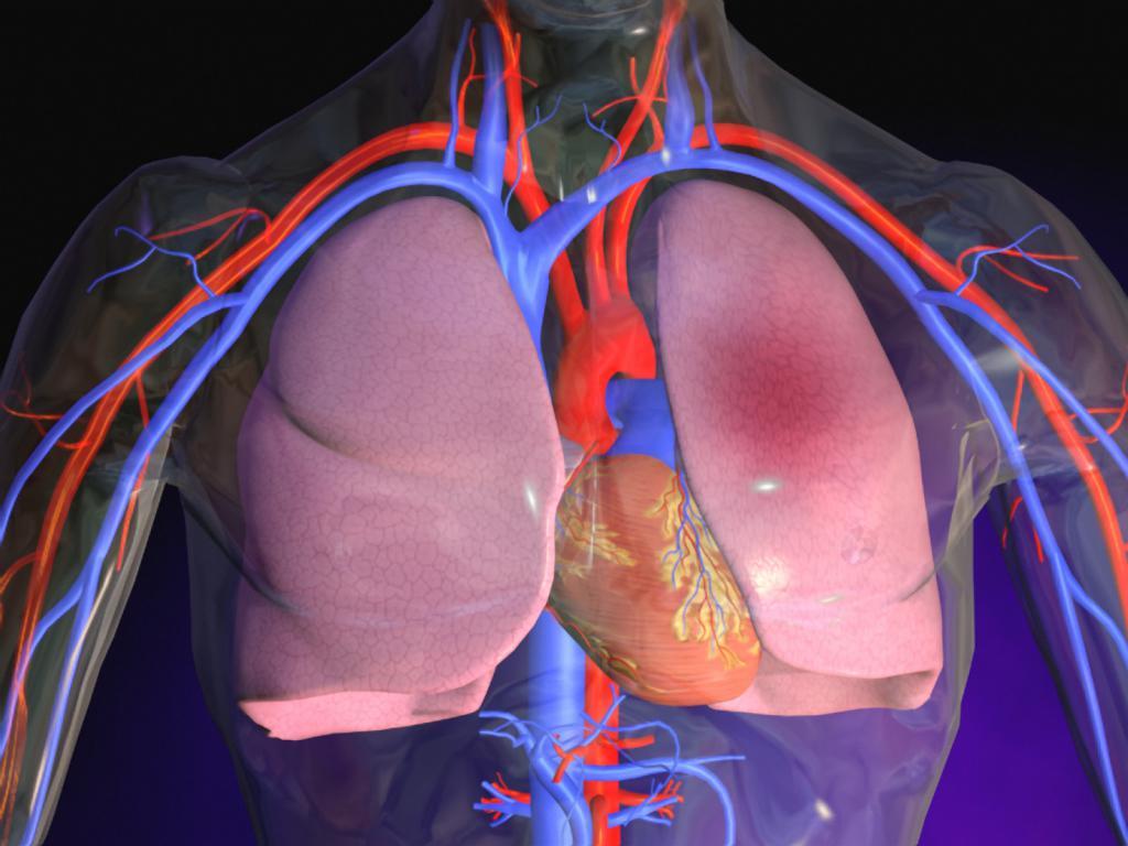 Признаки тромба в сердце
